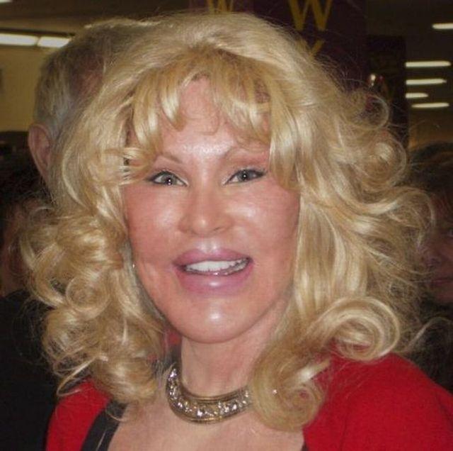 Jocelyn Wildenstein